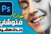آموزش ویدئویی فتوشاپ سفید سازی دندان در رتوش